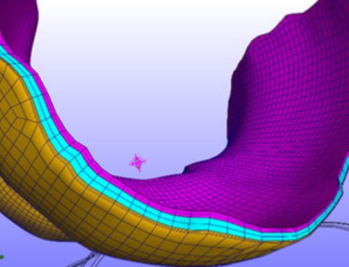 Personalized Knee Geometry Modelling based on Multi-Atlas Segmentation and Mesh Refinement